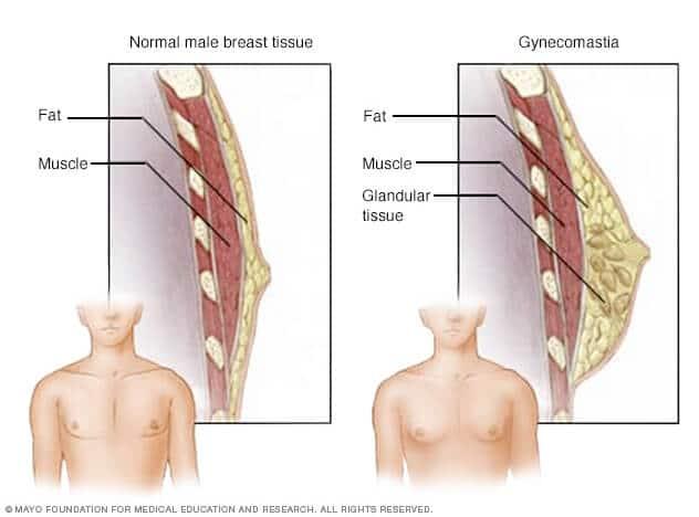 Ginecomastia - problema sanilor mariti la barbati